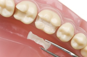 Inlay für einen Zahn