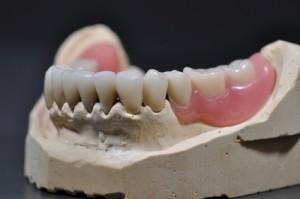 Veneers Zähne