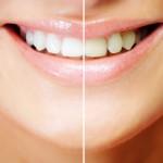 Zahn Bleaching - Vorher und Nachher