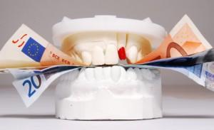 Die Kosten beim Zahn Bleaching