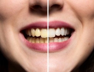 Unterschied nach der professionellen Zahnreinigung