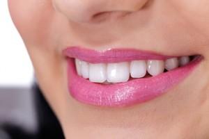 Weisse Zähne durch Zahn Bleaching