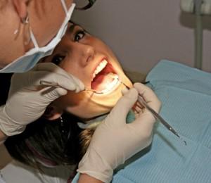 Zähne aufhellen beim Zahnarzt