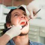 Erkrankungen am Zahn