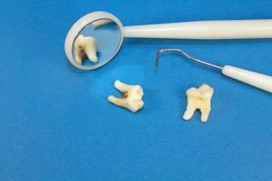 Die Behandlung einer Zahnwurzel