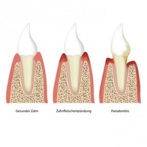 Entstehung von Parodontose