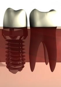 Zahnwurzel neben Teilprothese