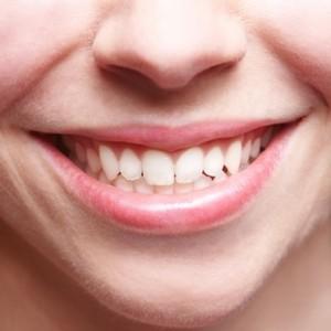 Lächelndes Gesicht mit schönem Zahnfleisch
