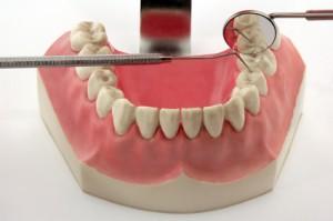 Suche nach einer Zahnfleischentzündung