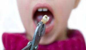Gezogener Zahn wegen Karies