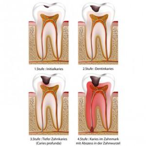 4 Stufen des Karies im Zahn