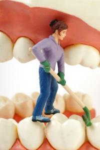 Illusorische Reinigung des Zahnschmelz