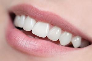 Menschliches Gebiss: Weisse Zähne