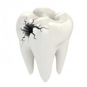 Gebrochener Zahn